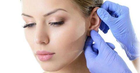 cosmetic-ear-surgery