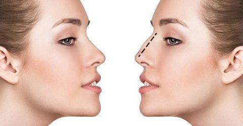 nose-plastic-surgery