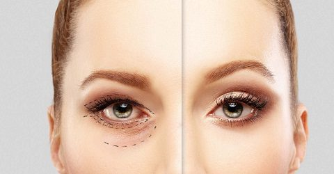 Actions Before Blepharoplasty Surgery