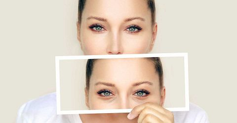 Care after blepharoplasty surgery