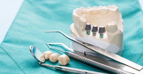 Dental implants in Karaj