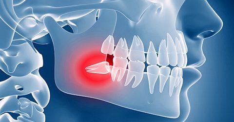 Surgery Latent teeth