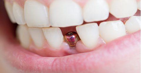 ایمپلنت دندان جلو در کرج