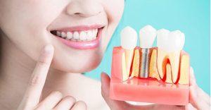 ایمپلنت دندان جلو فک پایین در کرج