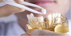 ایمپلنت قسطی دندان در کرج