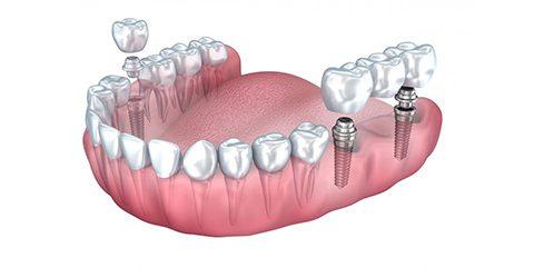 ایمپلنت یک روزه دندان در کرج