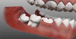 جراحی دندان نهفته عقل در کرج