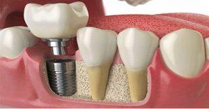 هزینه ایمپلنت دندان در کرج