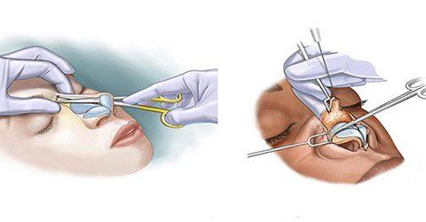روش جدید جراحی بینی در کرج