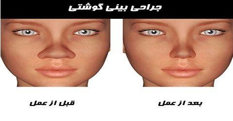 عمل بینی گوشتی در کرج